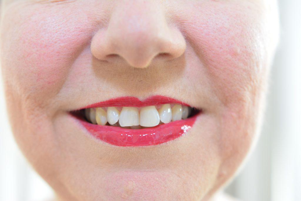 Shiney lips
